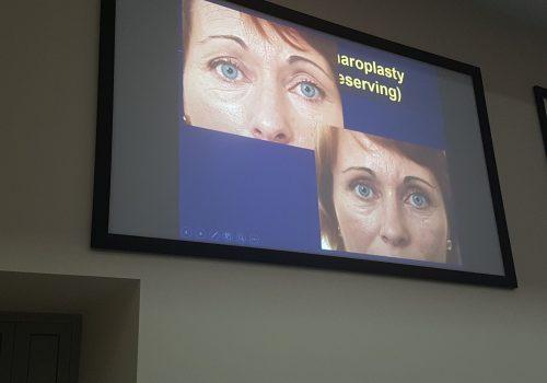 Омолаживающая хирургия лица